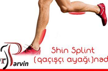 Shin Splint (qaçışçı ayağı)nədir?